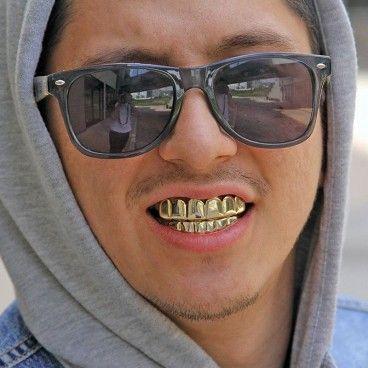 Ensemble de dent Or ou Argent style Hip Hop