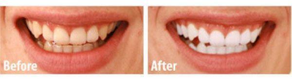 Kit de blanchiment dentaire White Light WhiteLight