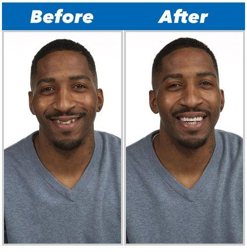 Dent de remplacement Perfect Smile réutilisable et amovible, pose instantanée GROUPON