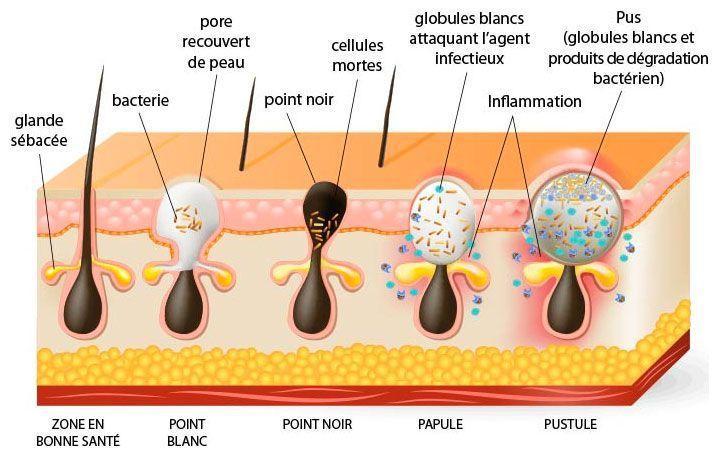 Schéma de l'acné GROUPON